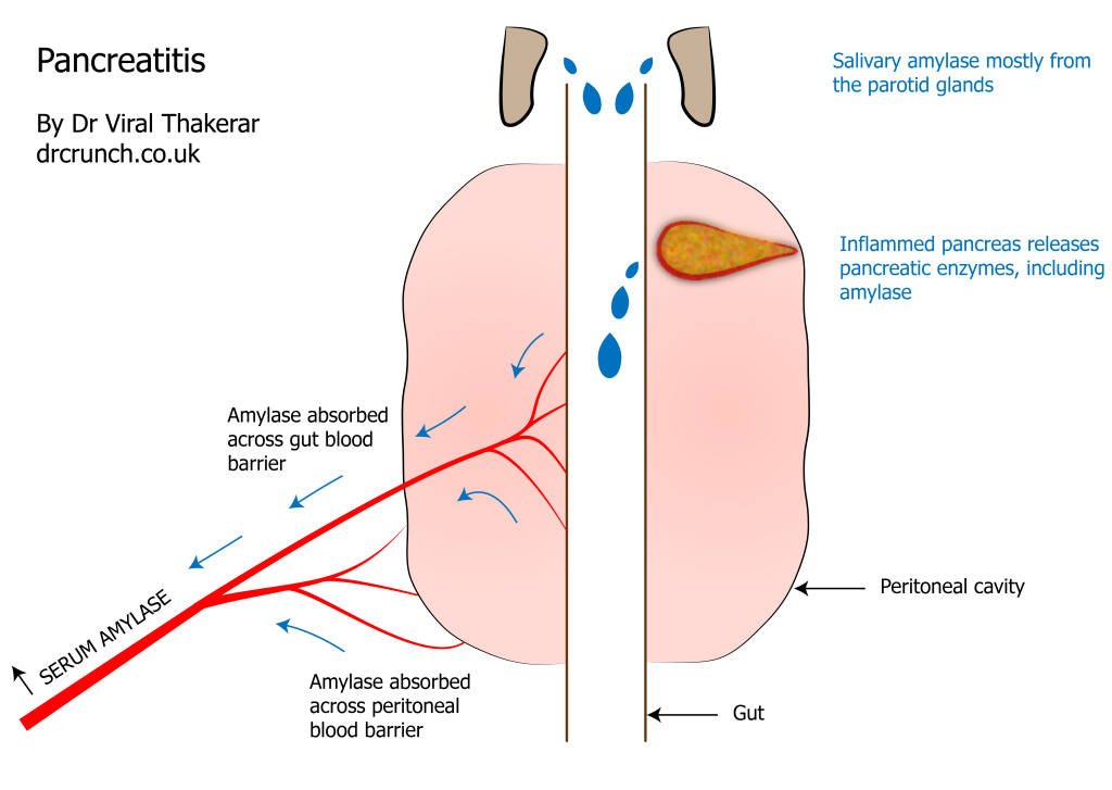 pancreatitis-01-01